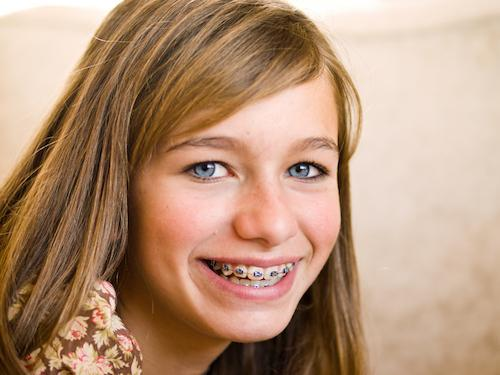 Braces in Santa Monica | Smiling Teen