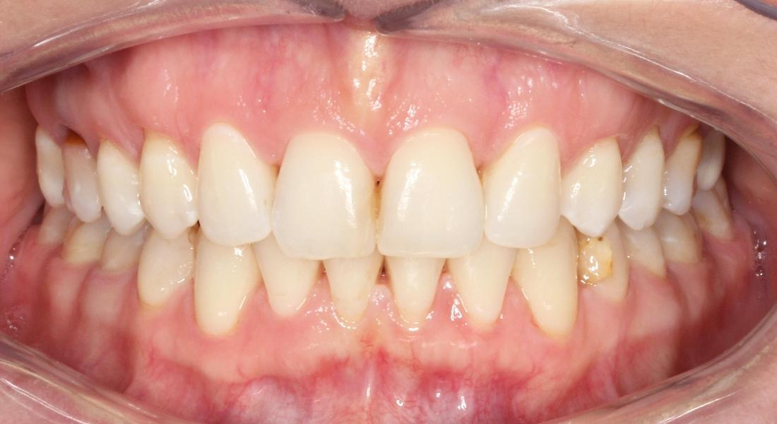 Adult Braces Smile Transformation
