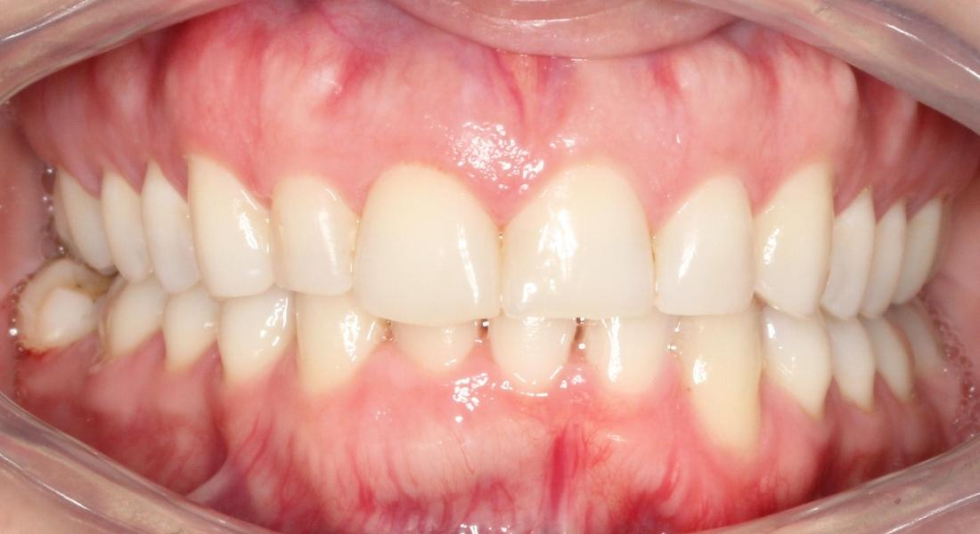 Invisalign in Santa Monica | Before & After