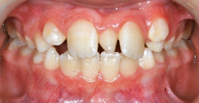 Two-Phases Braces for Kids in Santa Monica | Before