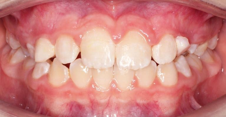 Phase-I-Limited-Braces-Treatment-After-Image