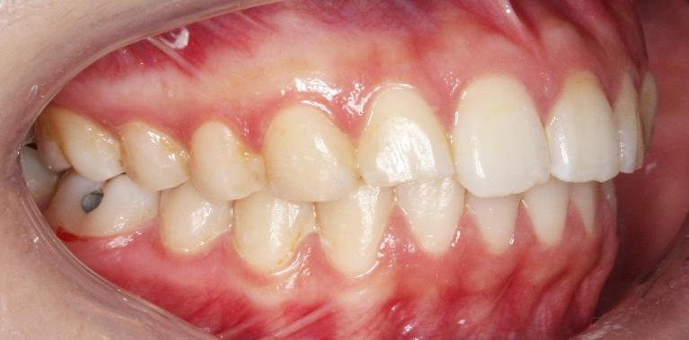 Flared-Upper-Teeth-Corrected-with-Invisalign-After-Image