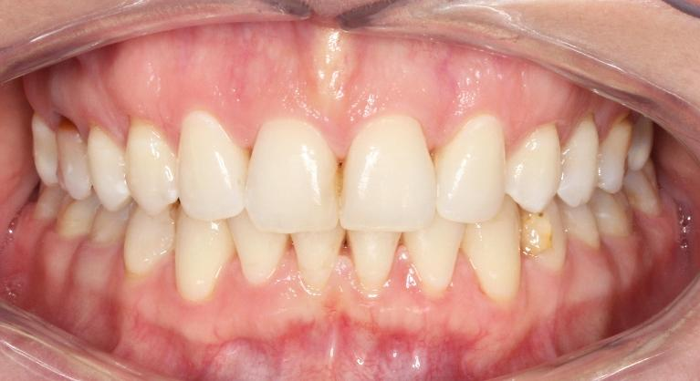 Adult-Braces-Smile-Transformation-After-Image