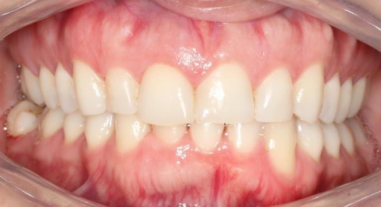 Invisalign-Smile-Transformation-After-Image