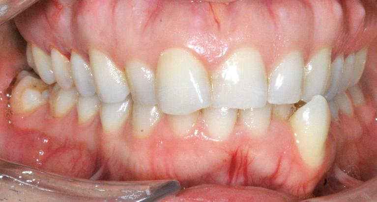 Invisalign-Smile-Transformation-Before-Image