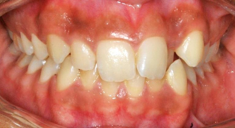 Adolescent-Braces-Smile-Transformation-Before-Image