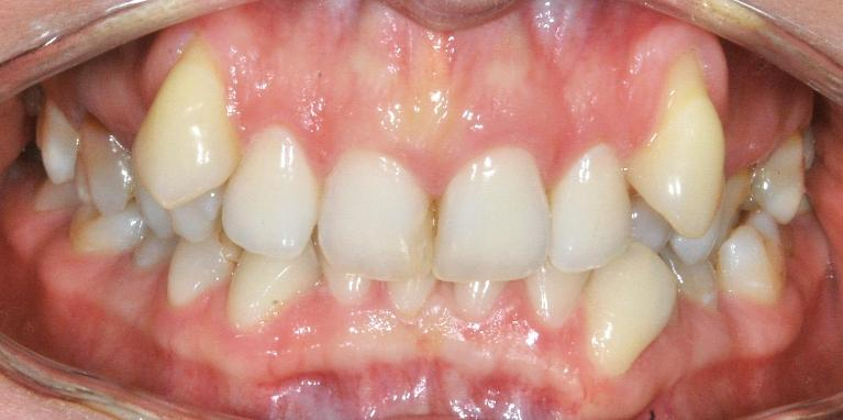 Adult-Braces-Smile-Transformation-Before-Image