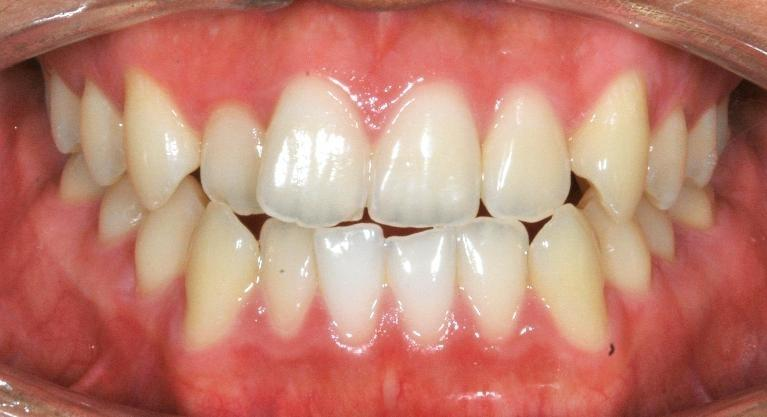 Braces-and-TADs-Smile-Transformation-Before-Image