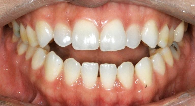 Open-Bite-Closure-with-TADs-Before-Image